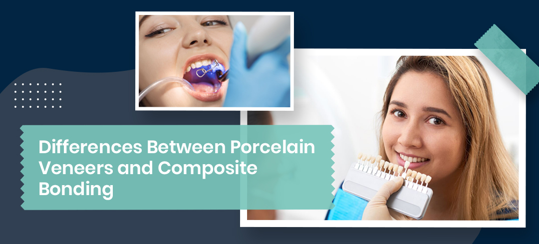Differences Between Porcelain Veneers and Composite Bonding - Dental Clinic London