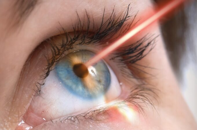 Guide to Laser Eye Surgery – Everything You Need to Know