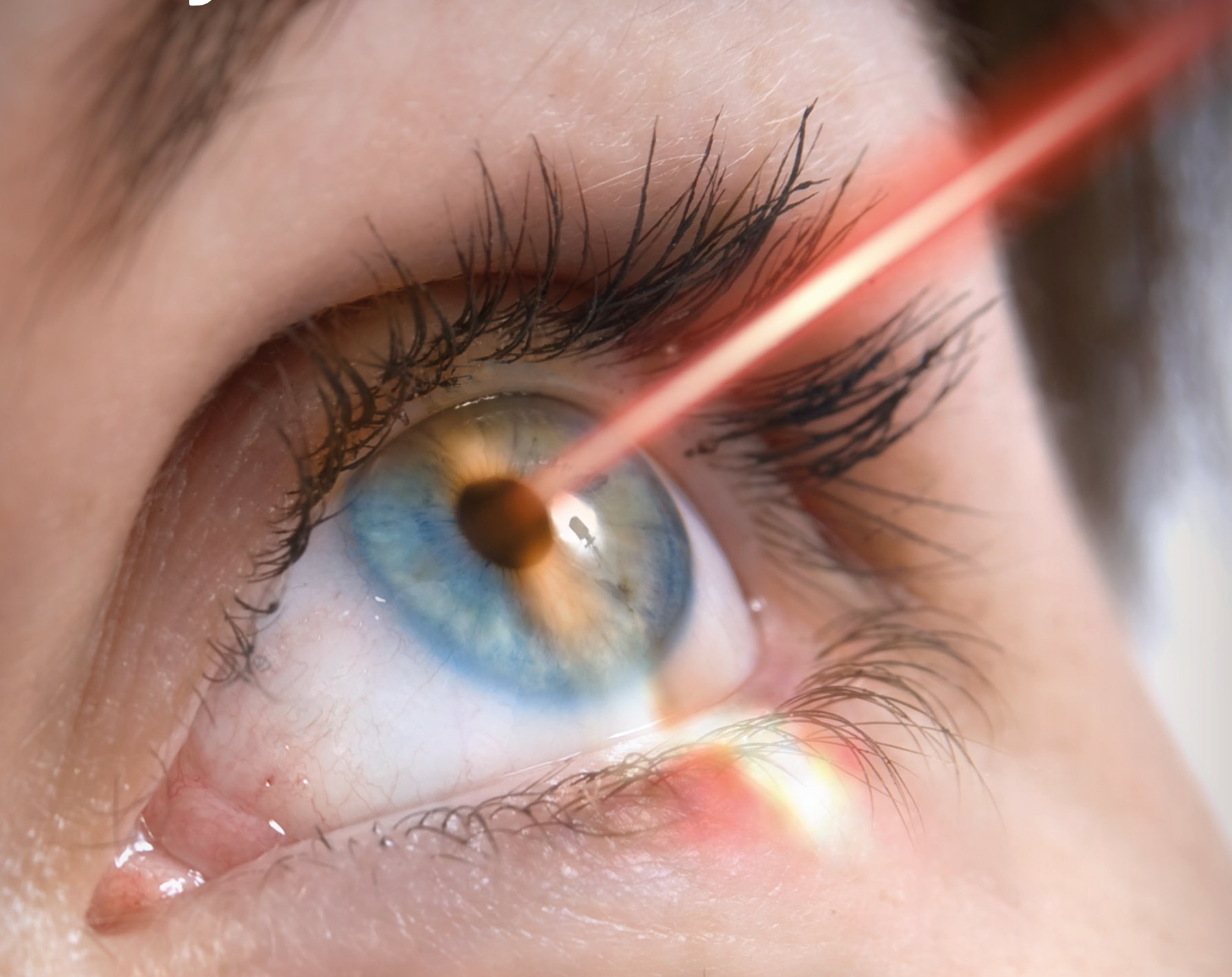 Guide to Laser Eye Surgery